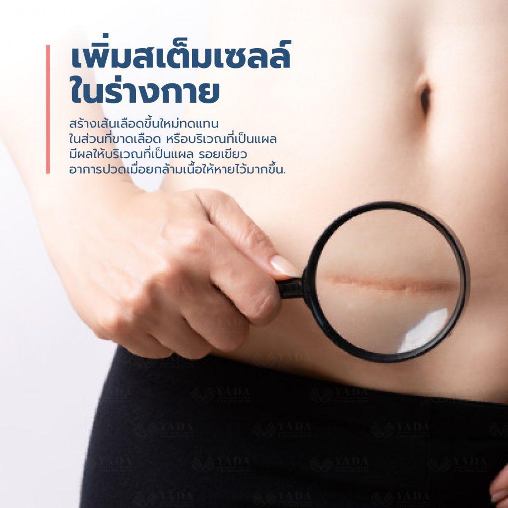 Hyperbaric Oxygen Pattaya7